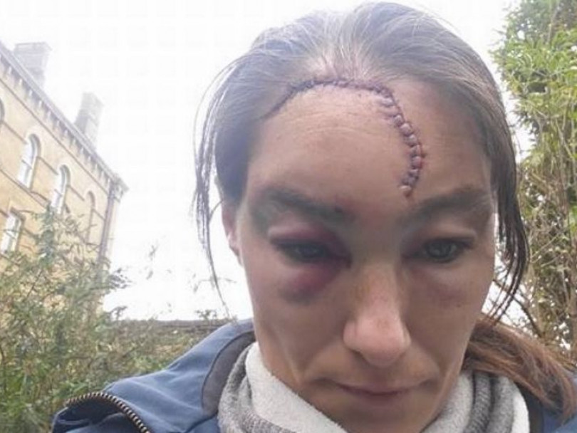 Police defend response to racial assault case