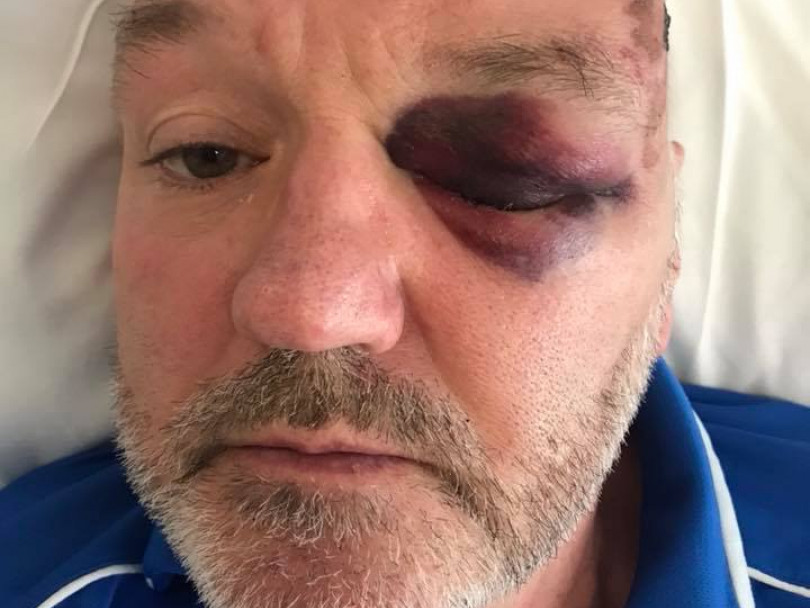 Disabled man 'left for dead' after brutal attack outside Dewsbury Minster