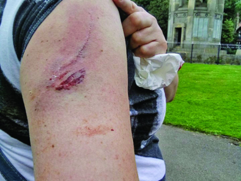 Attack dog 'was lethal weapon', says victim